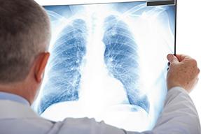 Actualización en urgencias respiratorias y abordaje inicial en emergencias